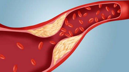 Xơ vữa động mạch gây tắc ngẽn mạch máu